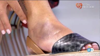Imagen del pie de Belén Esteban tras caerse por las escaleras de Mediaset
