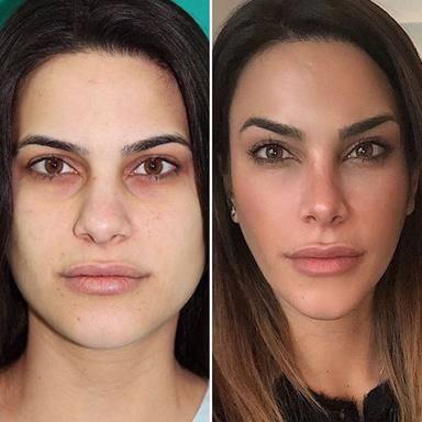 Carla Barber antes y ahora tratamientos