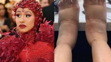 Las impactantes imágenes de la cantante Cardi B tras su última operación estética