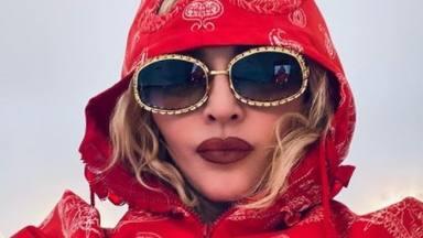 """Madonna acusada de poner su rostro en el cuerpo de otra chica con Photoshop: """"Borra esto ya"""""""