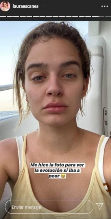 Laura Escanes muestra su cara hinchada tras sufrir una reacción alérgica a una crema