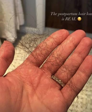 Caída del cabello Sara Sálamo