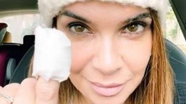 Carme Chaparro sufre las consecuencias de morderse las uñas
