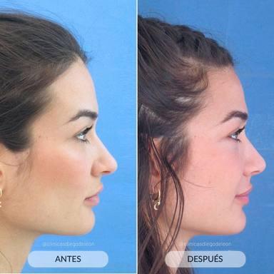 El antes y el después de la nariz de Estela Grande tras pasar por quirófano