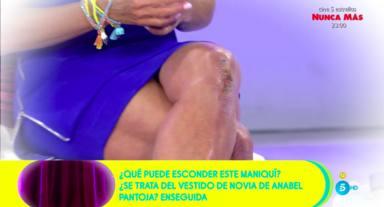 María Patiño con la herida de su rodilla, cada vez con peor aspecto, al descubierto
