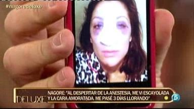 Nagore Robles salió de su operación de nariz con escayola y la cara amoratada