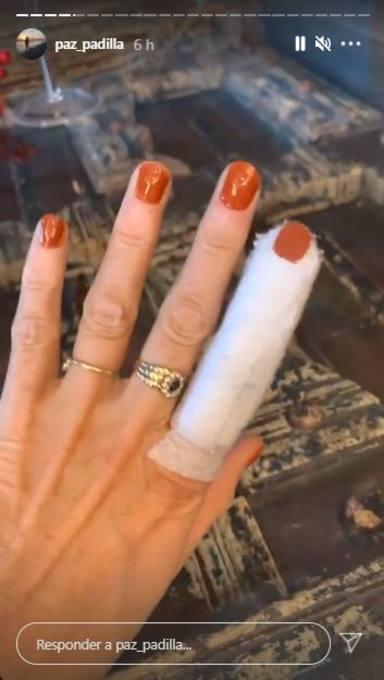 Paz Padilla accidente dedo cuchillo jamón