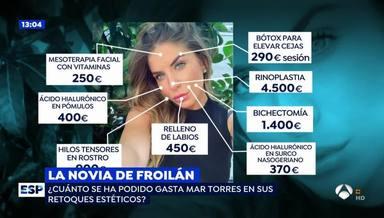 Las operaciones estéticas de Mar Torres, según Espejo Público