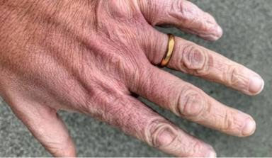 Las reveladoras imágenes de las manos de un sanitario italiano que lucha contra la COVID: Un ardor intenso