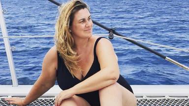 Carlota Corredera sufre una aparatosa caída en vacaciones que le ha dejado secuelas físicas