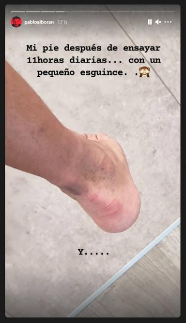 Pablo Alborán (Instagram Stories 1)