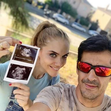 Bea Trapote y Victor esperan un bebé