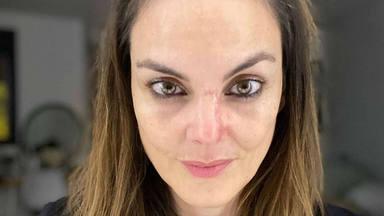 Mónica Carrillo anuncia que padece cáncer de piel con unas impactantes imágenes