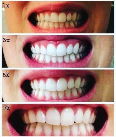 Carbón activado, la forma más perjudicial de lavarse los dientes