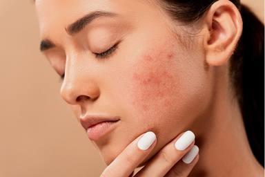 Com evitar l'acne i les irritacions que provoquen les mascaretes