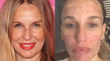 El antes y el después de la actriz Carola Baleztena y su denuncia tras un tratamiento estético