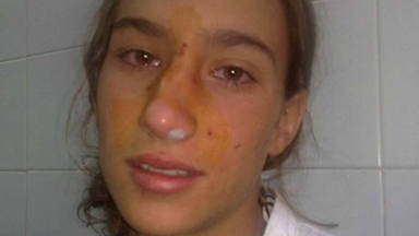 El mensaje de María Pombo a las niñas tras la polémica de su operación de nariz