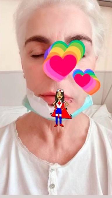 Así ha terminado la cara de Antonia DellAtte tras su accidente
