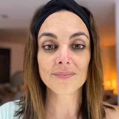 La cicatriz de Mónica Carrillo tras luchar contra un cáncer de piel en la nariz