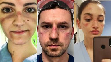 Los médicos que luchan día a día contra el coronavirus
