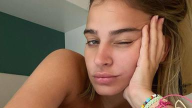 Laura Escanes no da el pecho a su hija
