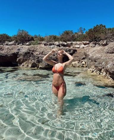 La nueva figura de Laura Escanes tras operarse el pecho