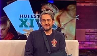 """Máximo Huerta, muy dolorido, confiesa el accidente que ha sufrido: """"A esperar qué deciden los cirujanos"""""""